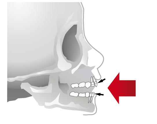 Dental illustration teeth