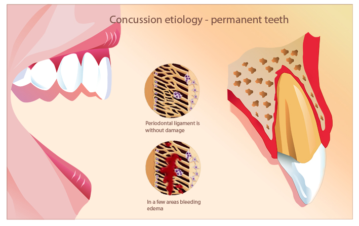 Dental illustration